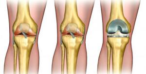 Artropant - forum - preço - como usar