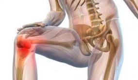 Artropant - como aplicar- farmácia - opiniões