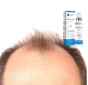 Vita Hair Max – Portugal – Onde comprar