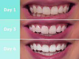 Snowhite Teeth Whitening- preço - como usar - efeitos secundarios